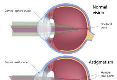 How do Contact Lenses Work